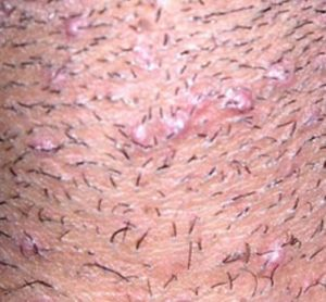 what do razor bumps look like in the pubic area