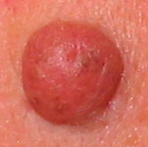 For example, there are pink moles, red moles, flat moles, raised moles, light moles, speckled moles, mature moles, and more. Some moles have the potential to turn into the skin cancer melanoma, but this gallery contains pictures of normal, non-cancerous moles and includes a discussion about what makes them benign-appearing.