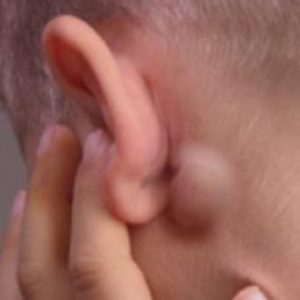 Swollen Lymph Nodes Behind Ear Cancer Causes Symptoms Pictures