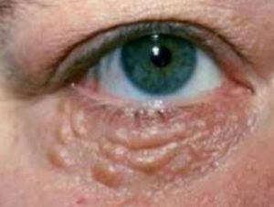 Bumps under Eyes, Meaning, Milia Dots, Causes, Hard