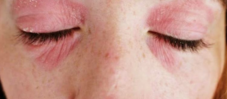 Rash Around Eyes Causes Red Pictures Not Itchy