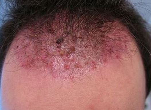 ingrown hair on scalp head cyst pictures big infected