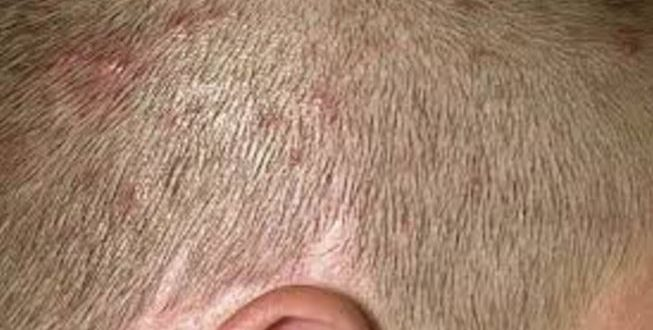 All About Painful Red Small Or Hard Itchy Bumps On Scalp Causes