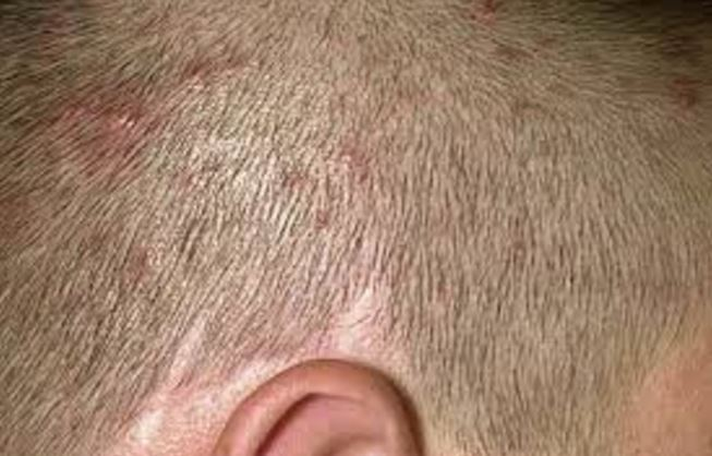 how to get rid of white spots on scalp