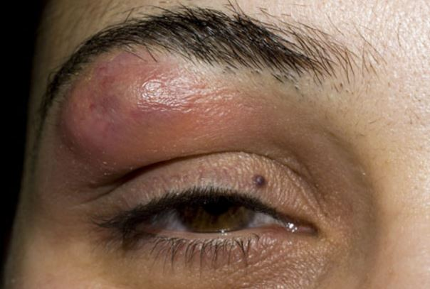 Lump in eyebrow bone causes above eyebrow cancer for Red bumps on my tattoo