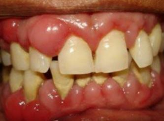 Swollen Gums, around Wisdom Tooth, Causes, Symptoms ...
