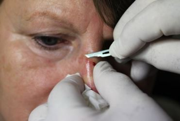 Lump on Nose Removal