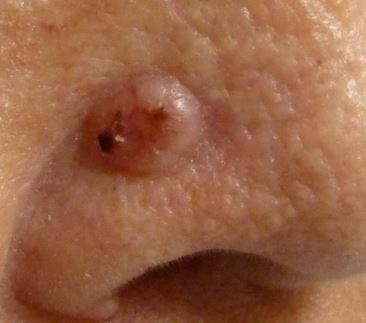Lump on Nose after Piercing