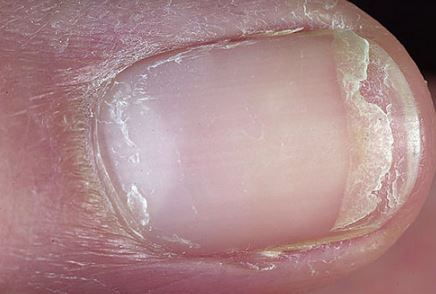 Nail Splitting, Cracked causes