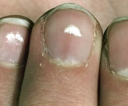 White Spots on Nails Meaning