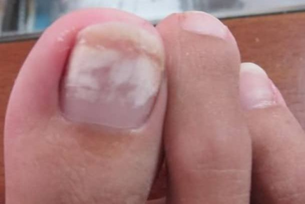 White Spots on Toenails after removing Polish