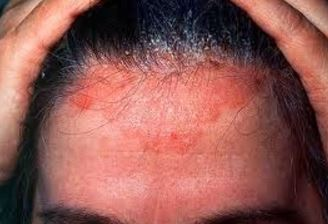 Picture, Image of Shingles on Scalp