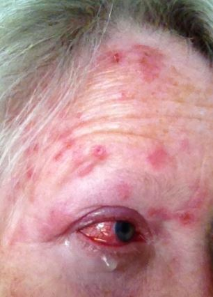 Shingles in Eye: Eyeball, Pictures, Symptoms, Causes ...